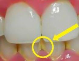 Миниатюра к статье Зубной налет исчезнет спустя 5 минут!