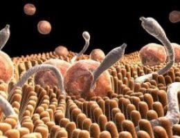 Миниатюра к статье 10 признаков того, что у Вас паразиты